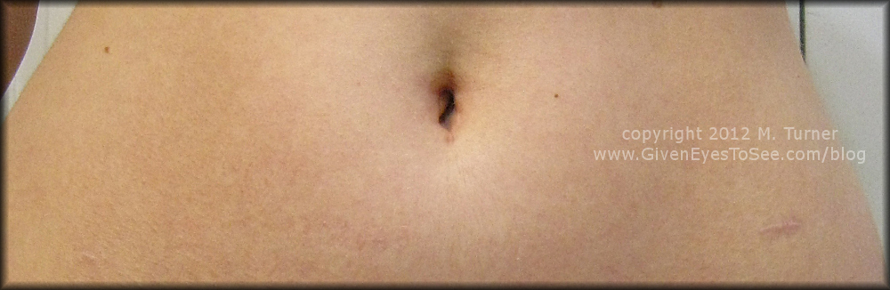 Pic of stomach and scars 8 months post op after hysterectomy